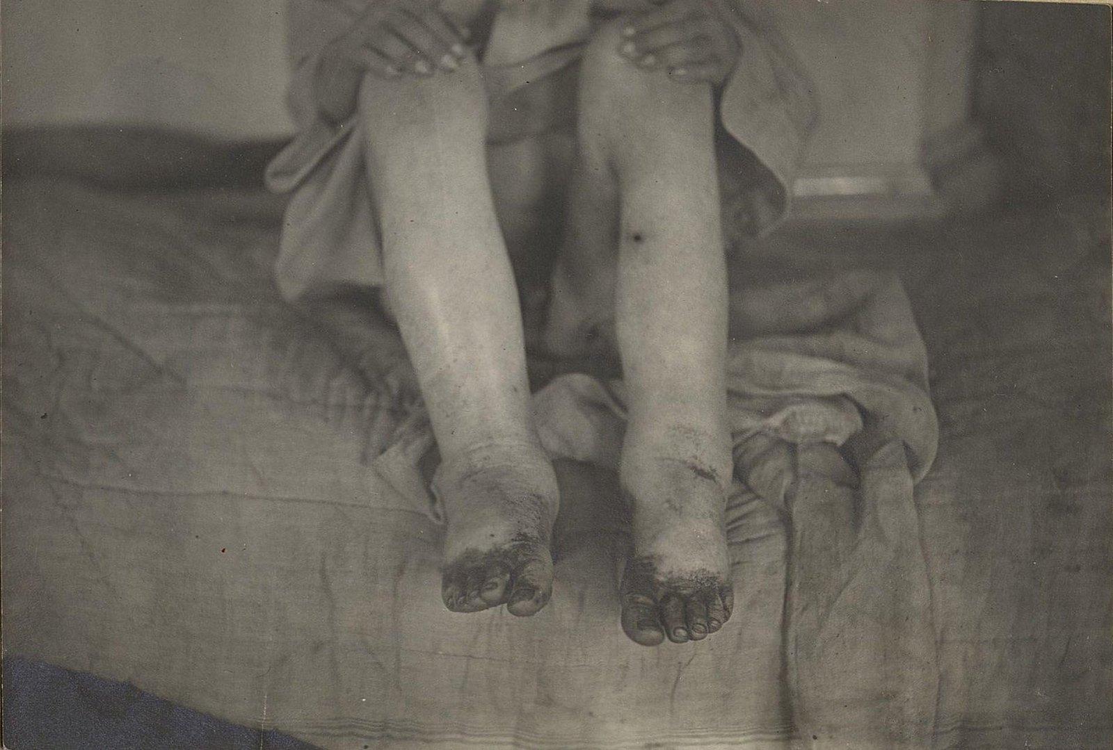 Опухшие от голода дети (Самарская губ.) (2)