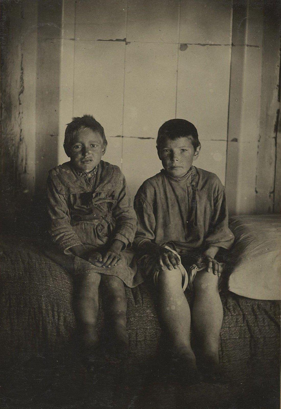Опухшие от голода дети (Самарская губ.)