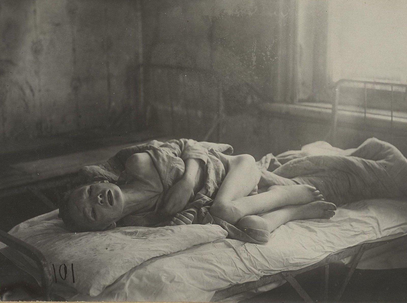 Больница для детей. Вопль от боли и муки больного цингой ребёнка. (Самарская губ., Бугурусланский уезд, г. Бугуруслан)
