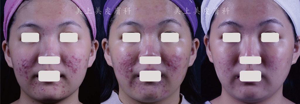 青春痘治療的新武器恆淨痘痘程式!有效幫助你治療青春痘,讓青春痘不再發生,沒有青春痘,就沒有痘疤困擾!