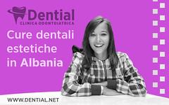 Correzione difetti estetici dei denti in Albania