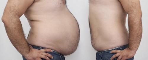BruceGreyHypnosis_Weight-Loss-Hypnosis_Losing-Weight