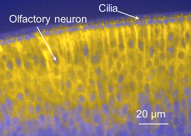 Olfactory neuron and cilia