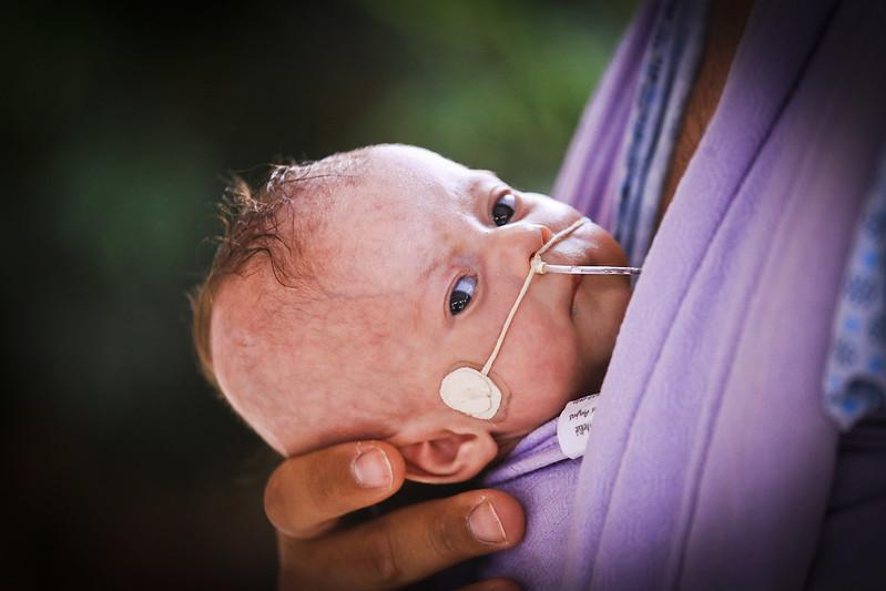 Chá da prematuridade ensina a importância do vínculo das mães com os prematuros