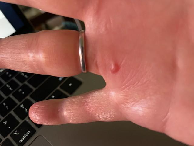 Got a blister