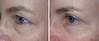 Drucker_Left_Eye 15