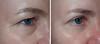 Drucker_Right_Eye 17