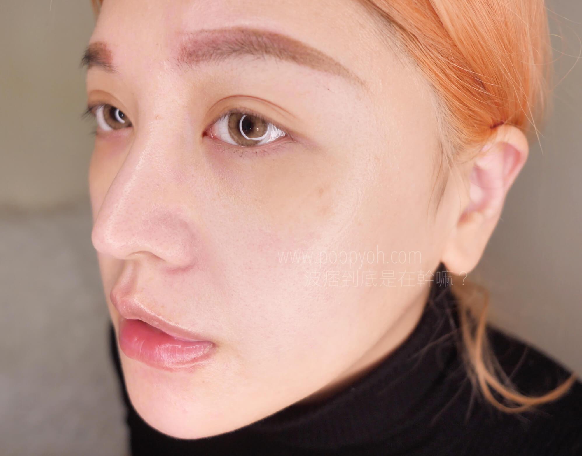 光澤 皮膚