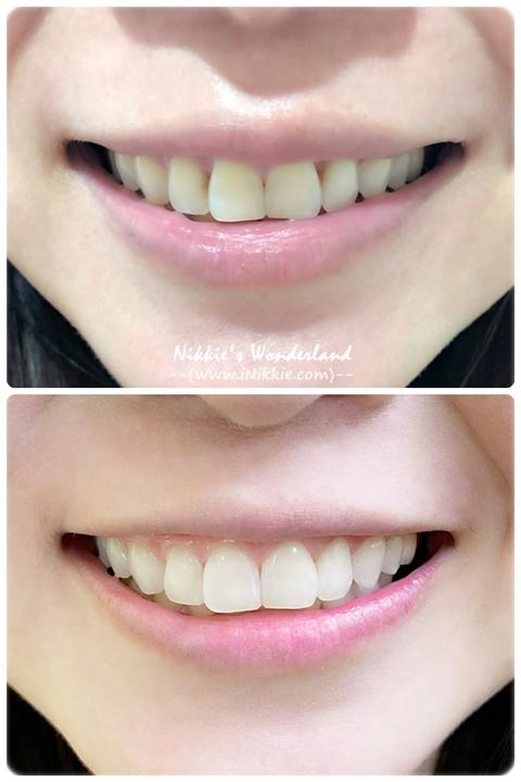 悅庭牙醫診所 居家牙齒美白