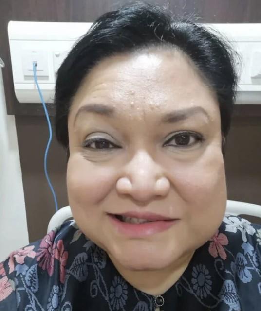 Seperti Faye Kusairi, Kini Adibah Noor Juga Turut Mengidap Bell's Palsy