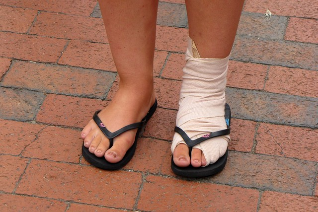 Woman with bandaged foot and ankle