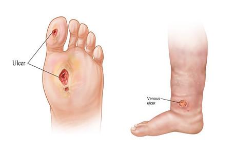 Peripheral Arterial Disease Diabetes