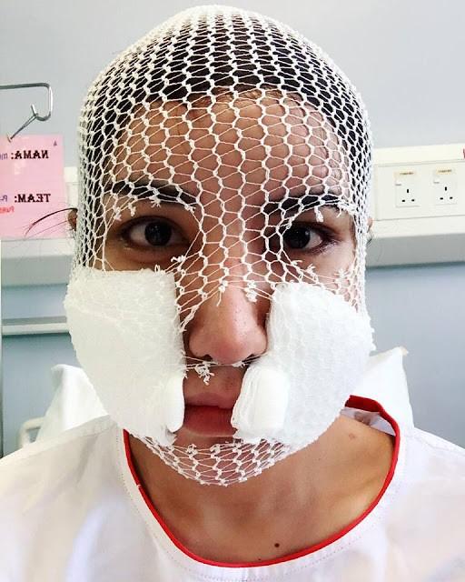Safiey Illias Mengaku Buat Pembedahan Kerana Hobi, Bukan Sebab Nak Cantik