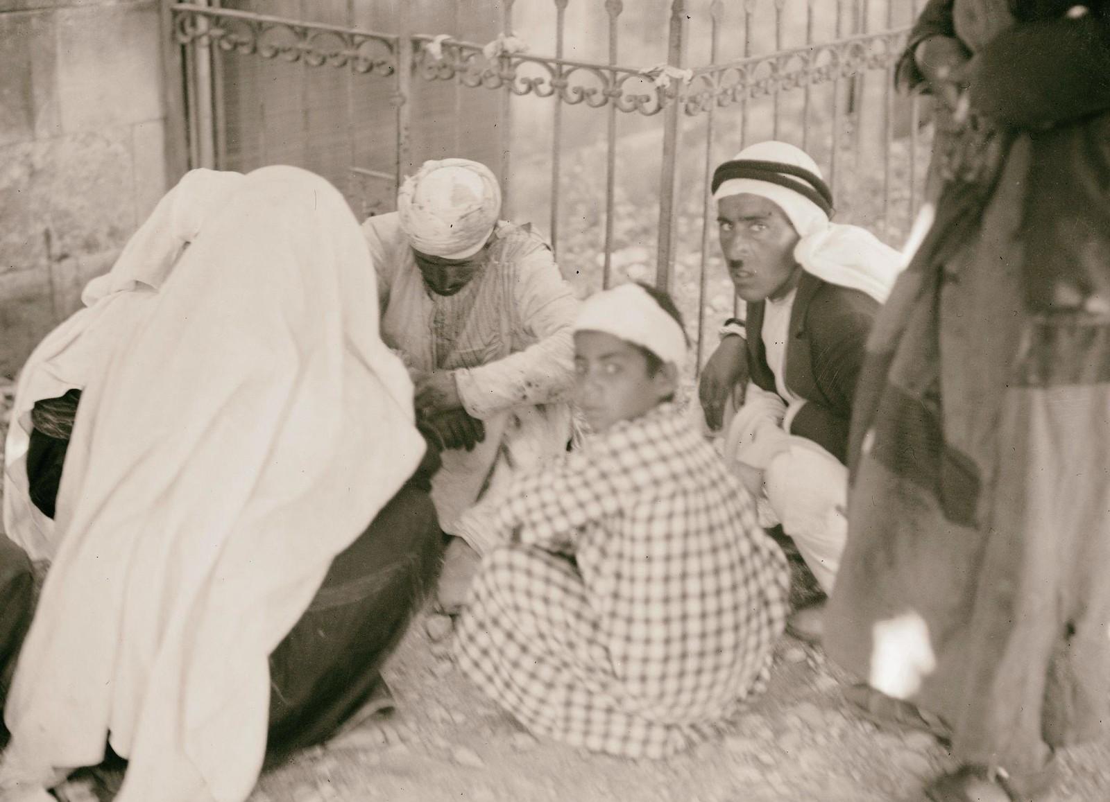 15. 1938. Нападение на арабский автобус 4 июля. Пострадавшие от взрыва бомбы