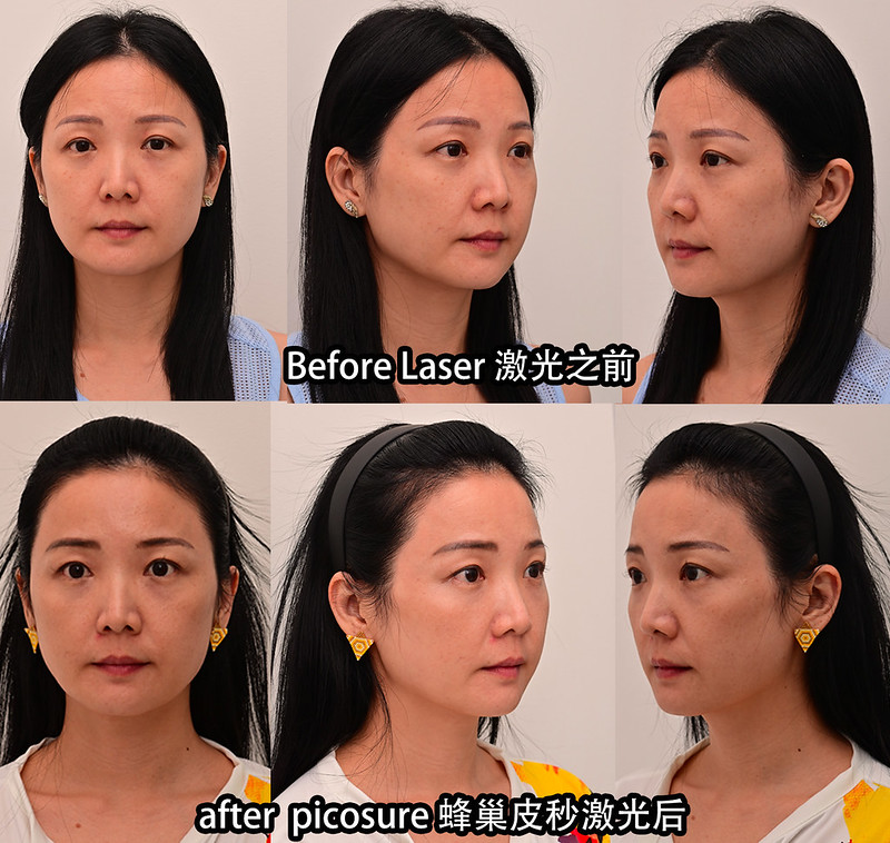 picosure before after