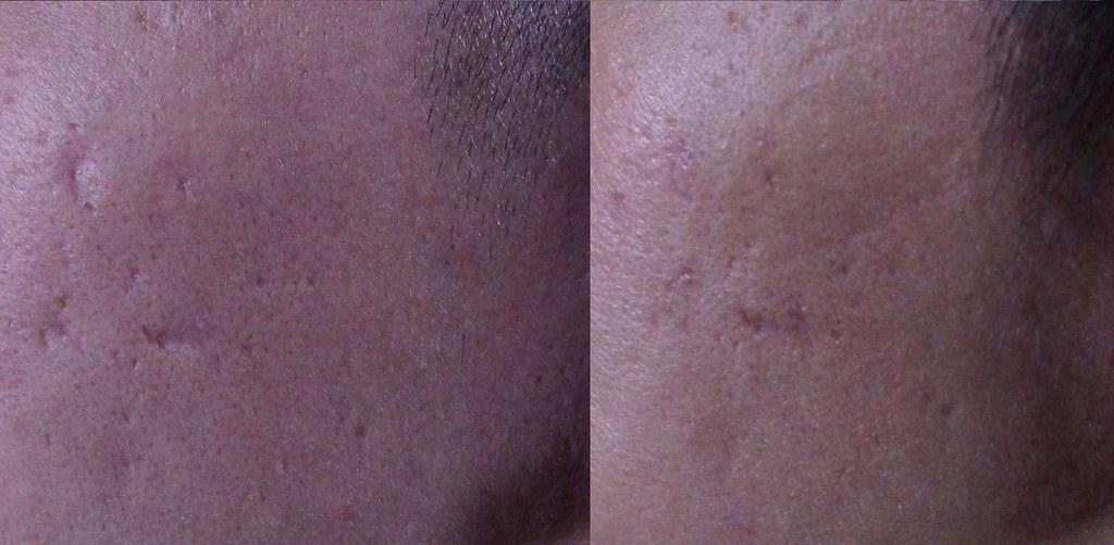 痘疤治療的外科手術治療-真皮移植手術治療凹痘疤