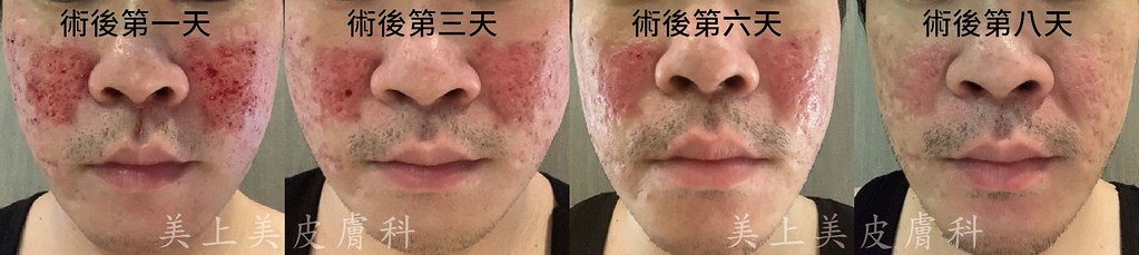 鉺雅鉻雷射又稱磨皮雷射,是治療淺層痘疤的好機器!