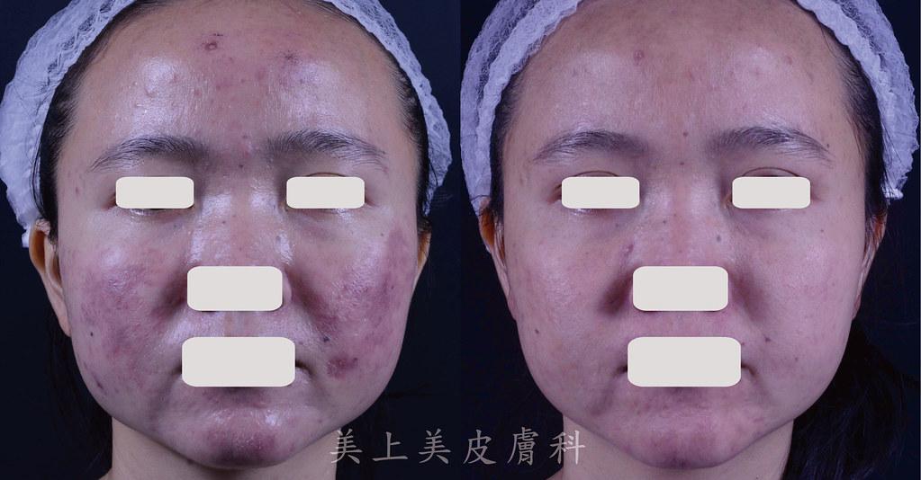光動力療法-治療青春痘-青春痘治療-控油
