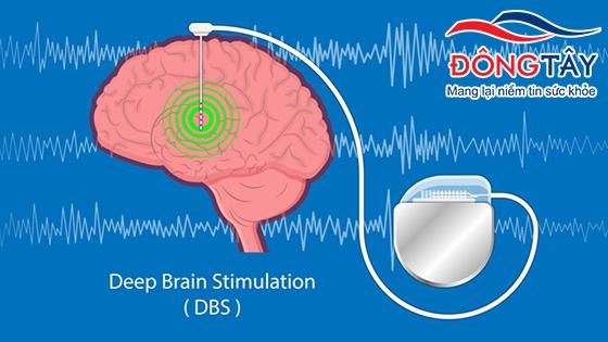 Kích thích não sâu giúp cải thiện triệu chứng cho người bệnh Parkinson
