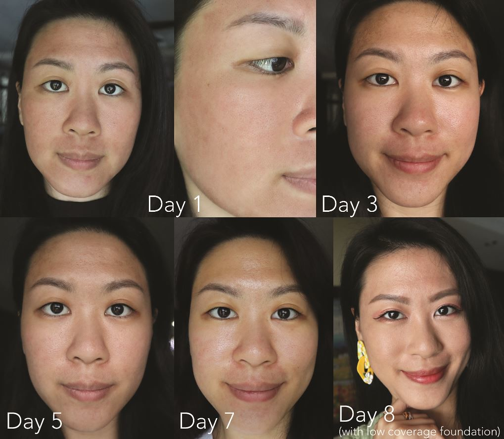 My 8-day skin recovery photos post-treatment