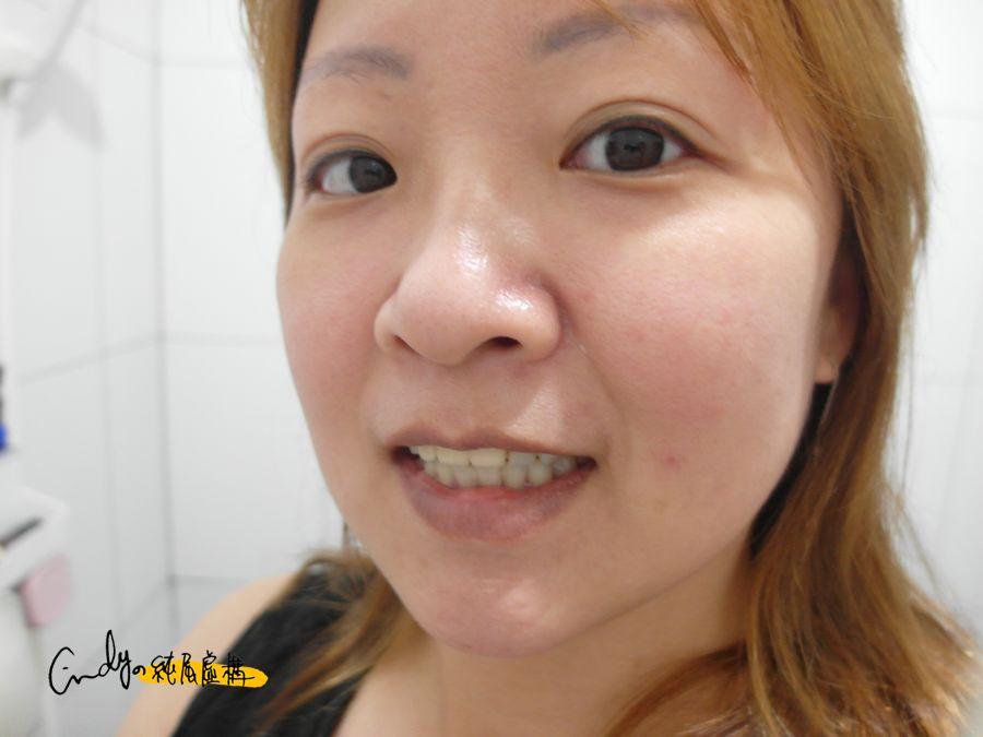 紐西蘭天然牙齦護理師