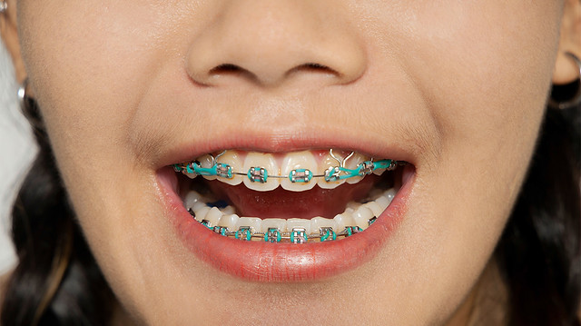 Rubber bands connect to the brackets on your braces and can be positioned in many different conformations. - Kami Hoss