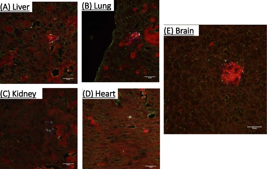 研究人員用螢光化學物質標記這些塑膠微粒以利辨識,科學家實驗發現,在鼠胚胎的(A)肝臟、(B)肺臟、(C)腎臟、(D)心臟和(E)腦中都出現塑膠微粒。圖片來源:《顆粒與纖維毒理學》期刊