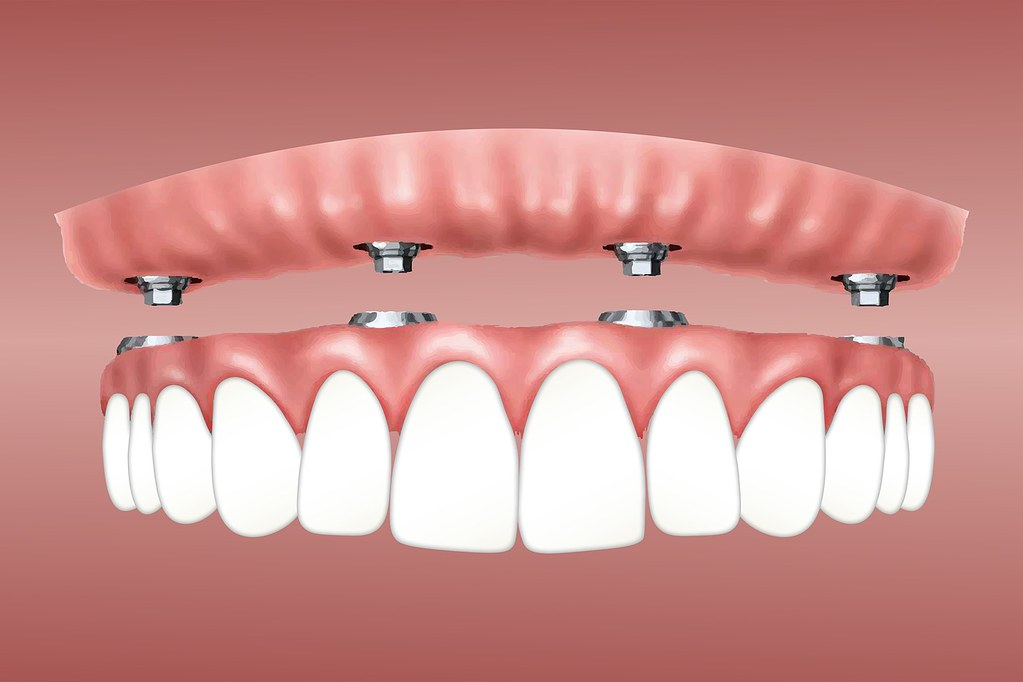 Paynless Dental - Toongabbie Dentist - Affordable Dentist