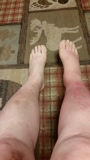 Leg Show, Day 5