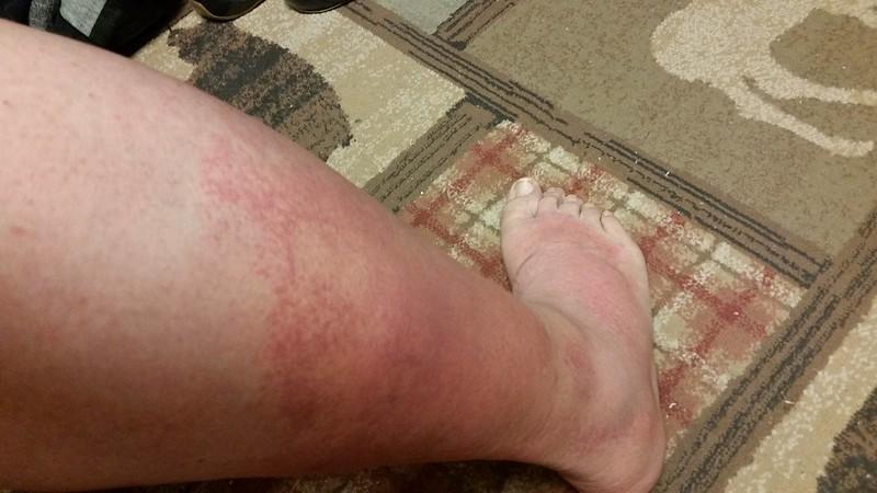 Leg Show, Day 6