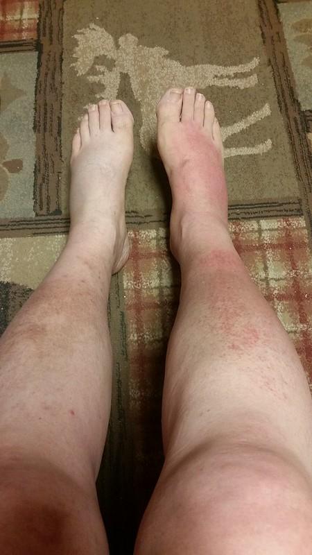 Leg Show, Day 7