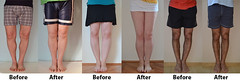 Looking for a Permanent Remedy for Bow Legs - Without the Need for Surgery.