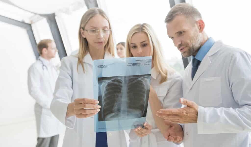 prédire-effet-de-immunothérapie-sur-le-cancer-du-poumon