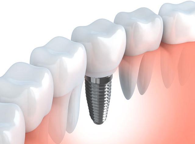 Dental Implants Online