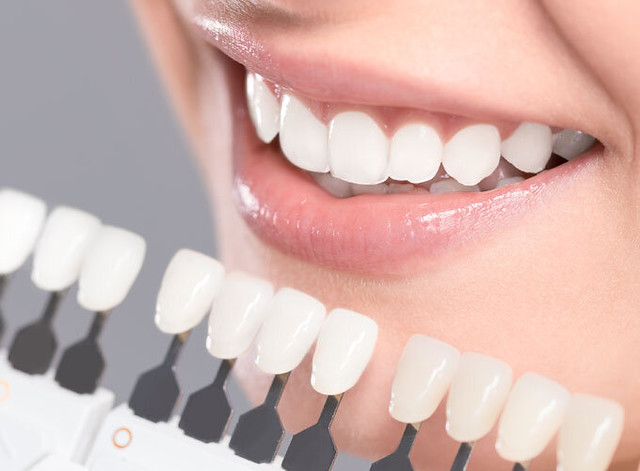 Veneers In Sutherland Shire At Cost Effective Rate
