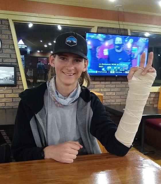 Sam's broken arm 2