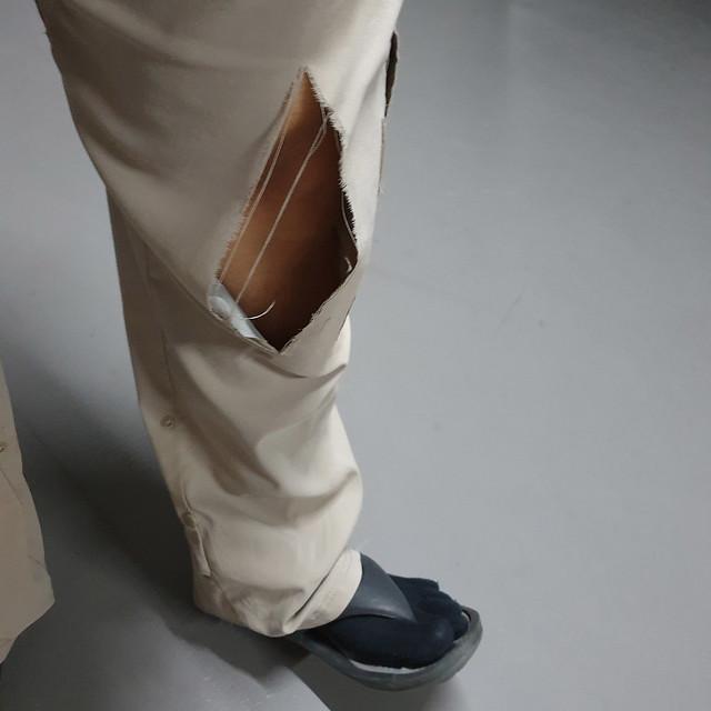 Torn pants... oops - 20210505_011000