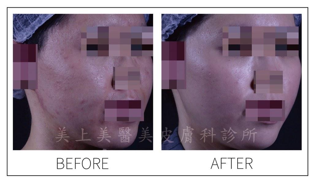 凹洞痘疤,凸痘疤令人困擾,痘疤治療是一件困難的事,皮秒雷射治療痘疤是最新最佳的痘疤治療方法,痘疤治療診所推薦美上美皮膚科,治療痘疤凹洞更是美上美的專業