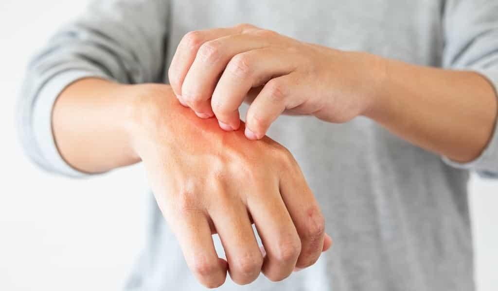 un-détecteur-de-maladies-de-la-peau