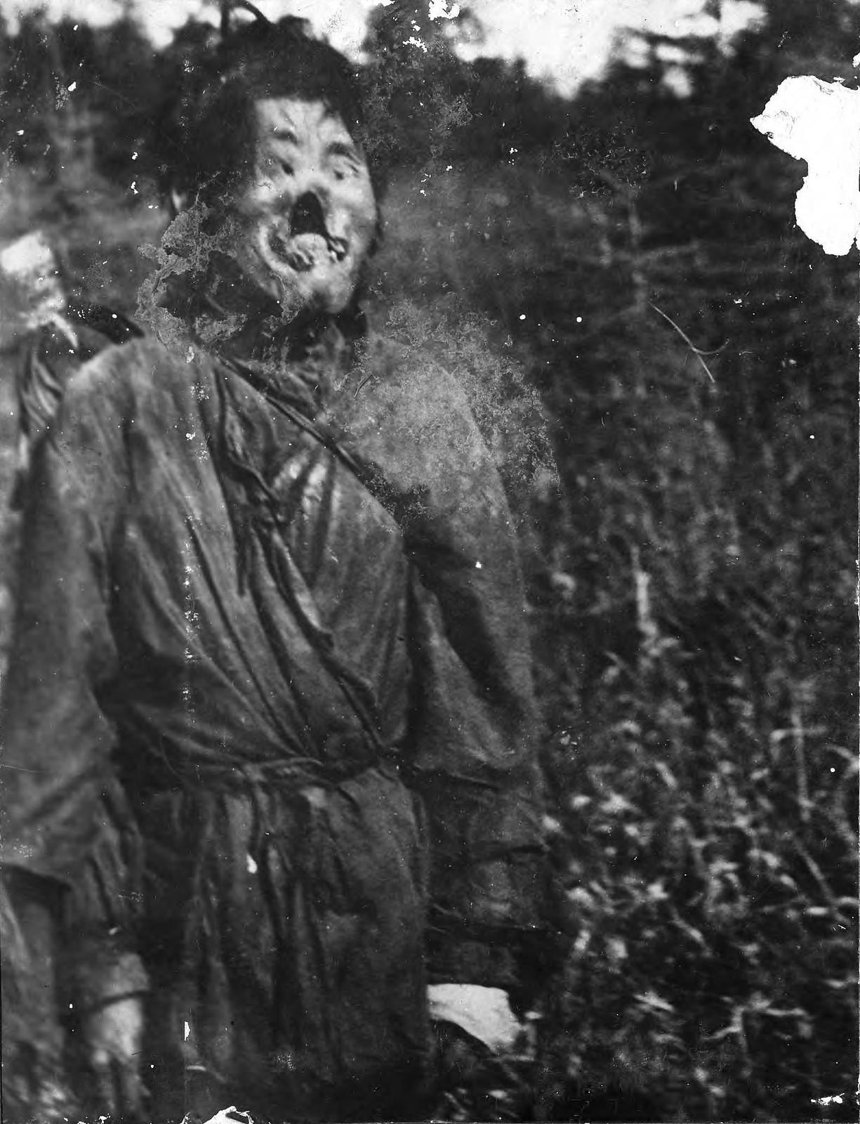 1910. Местный житель, больной сифилисом