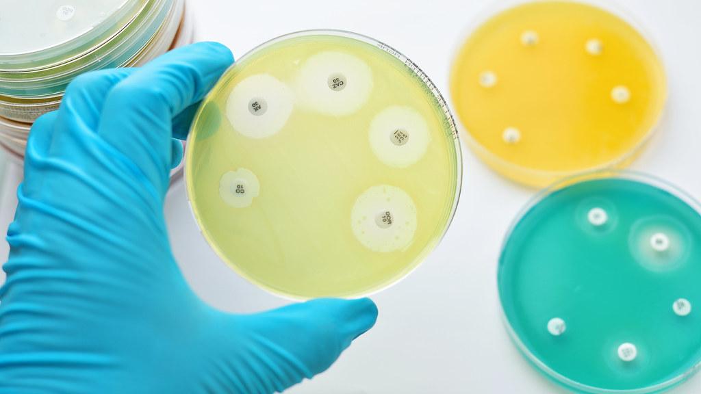 Petri dishes testing antibiotic effectiveness