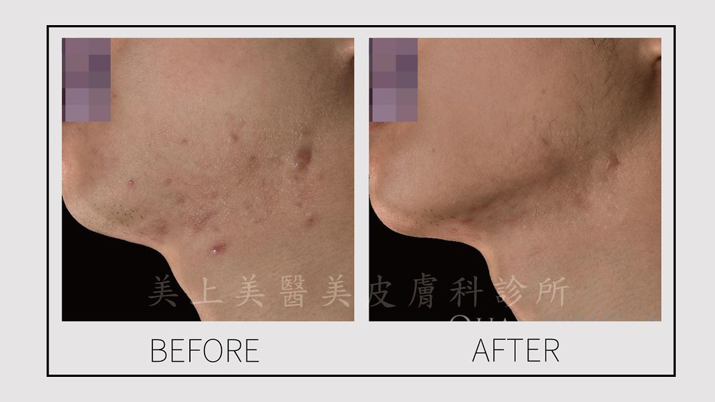 凸痘疤可稱為增生痘疤或是蟹足腫。治療凸痘疤的方式是用淨膚雷射和脈衝光跟消疤針。要做痘疤治療請找美上美皮膚科,美上美皮膚科對於痘疤治療有獨特的治療方式。