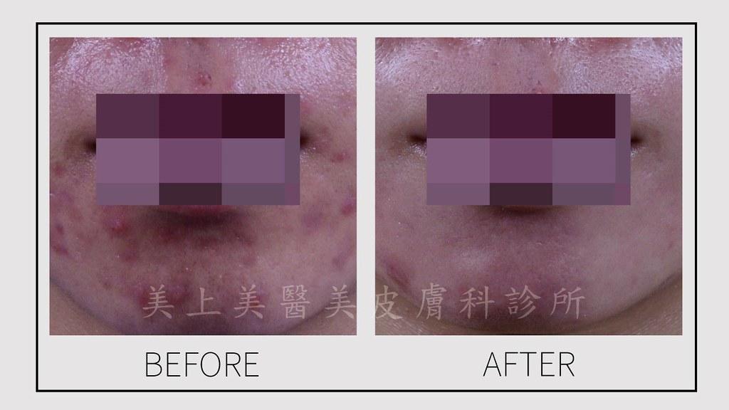 色素痘疤是假性痘疤,色素痘疤平均半年後就會消失,也可以透過皮秒雷射、585二極體雷射、淨膚雷射、杏仁酸換膚、深度美白等方式,來解決色素痘疤!美上美的皮秒雷射、585二極體雷射是你的首選!