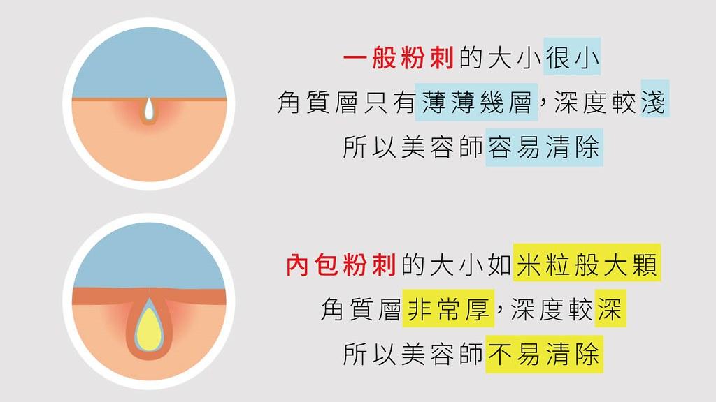 囊腫型青春痘是因為過多的皮脂分泌而造成,不做青春痘治療就會變成凹痘疤。三階段煥膚能有效控油並治療囊腫型青春痘,囊腫型青春痘非常難治療,最好的方法就是有效控油不要長青春痘!
