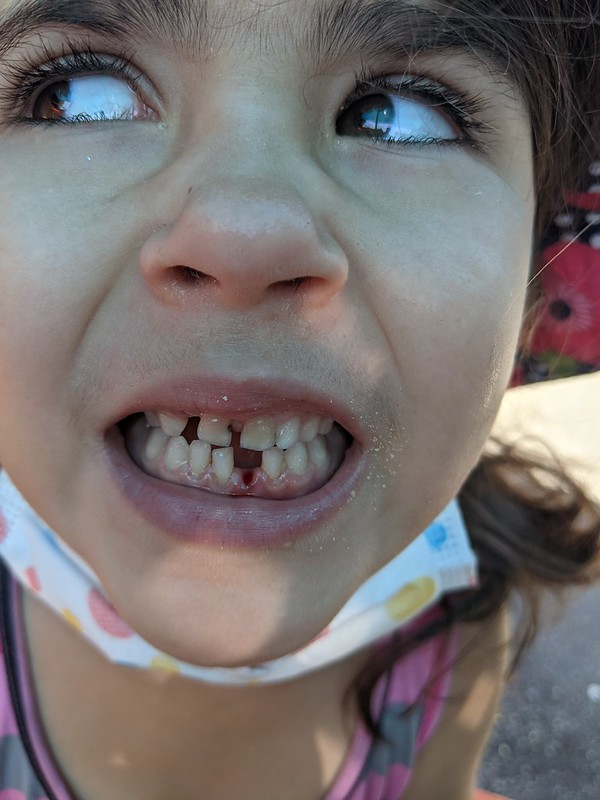 First* Lost Tooth