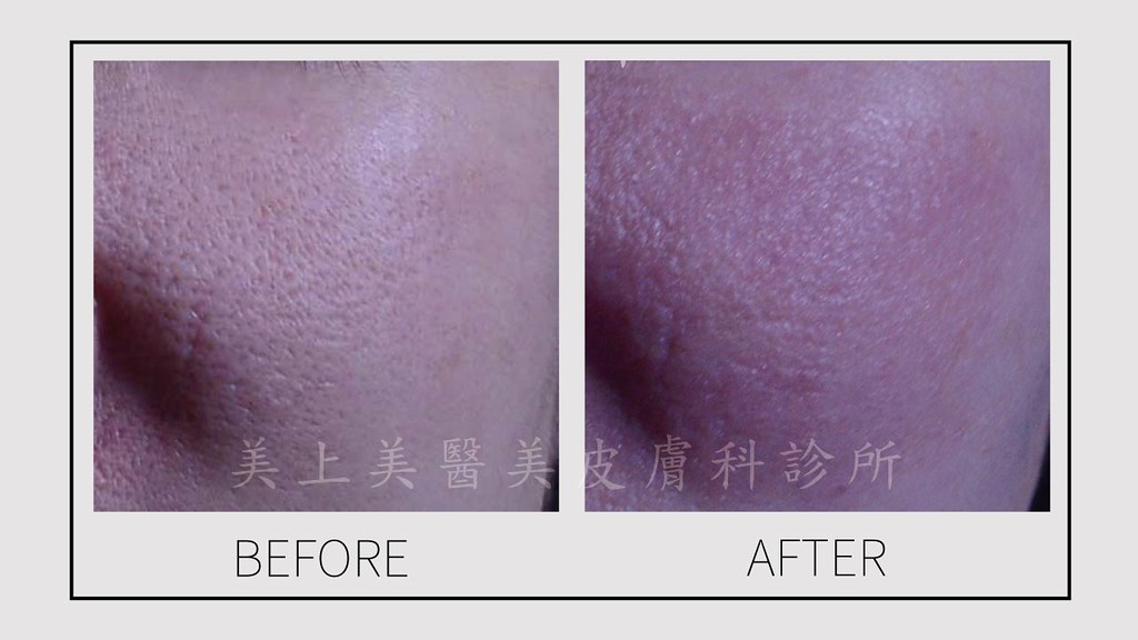 超飛梭雷射是治療毛孔粗大的首選!許多有毛孔粗大的患者,打了好幾次飛梭雷射,但是依然沒有效果,超飛梭雷射能穿透到真皮層,剌激膠原蛋白,達到皮膚細緻、縮小毛孔、減少細紋的效果!