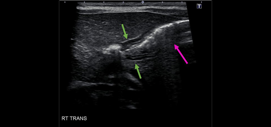 Normal pylorus-Normal, non distended stomach