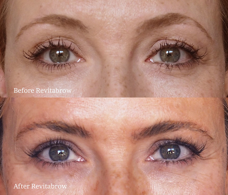 Revitabrow review: How to Get Long Eyelashes and Fuller Brows Naturally, Before and After