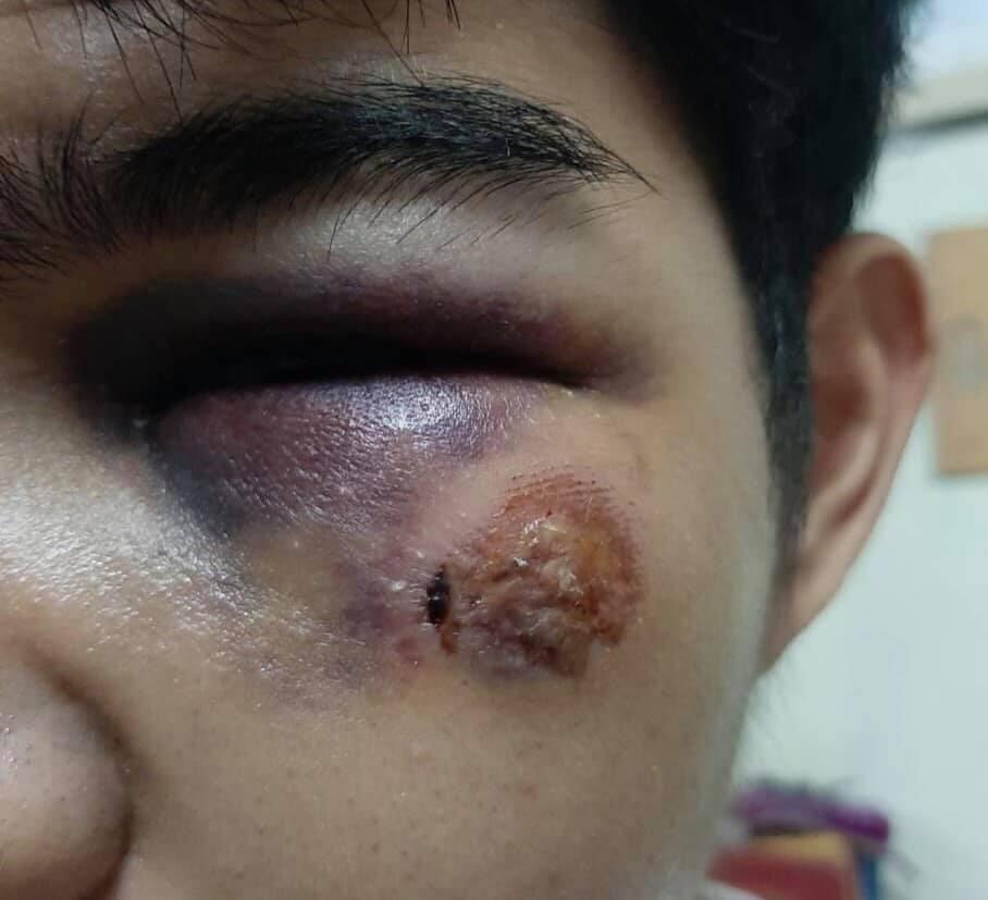 บาดแผลจากกระสุนยางบริเวณใต้ตาซ้ายของ 'โคล่า'