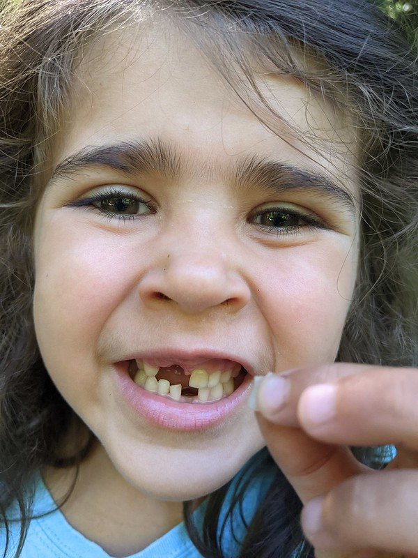 Lost Tooth #2